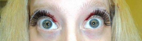Eyelashfail